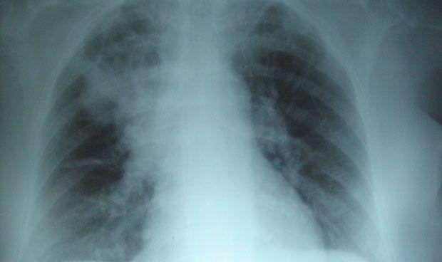Nuevo tratamiento para detener la progresión de la fibrosis quística
