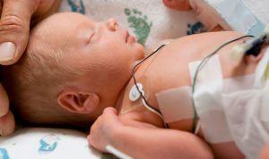 Operación pionera para curar la grave arritmia de un bebé prematuro