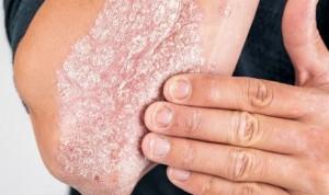 Los pacientes con psoriasis no son más susceptibles al Covid-19