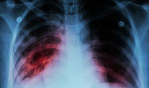 País Vasco activa el protocolo por tuberculosis tras un caso en Vitoria