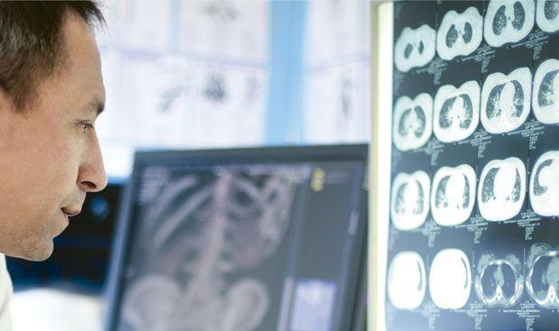 Paso adelante de Quirónsalud en diagnóstico precoz del cáncer de pulmón
