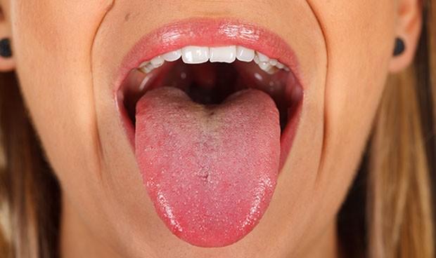 Perder grasa en la lengua mejora la apnea obstructiva del sueño