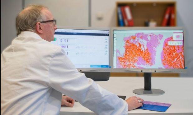 Philips crea un software para la detección de tumores de próstata y ovarios