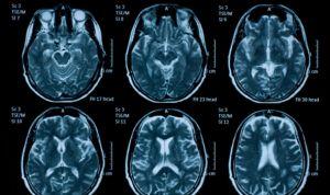 Predicen mejor el peligro de ictus en pacientes de fibrilación auricular
