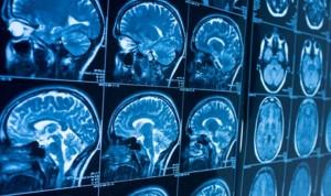 Problemas de memoria en pacientes Covid hasta dos meses después del alta