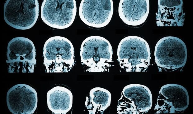 Pruebas gen�ticas determinan epilepsia en ni�os con convulsiones