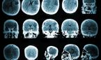 Pruebas genéticas determinan epilepsia en niños con convulsiones