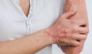 La inhibición de una proteína alivia los síntomas de la psoriasis