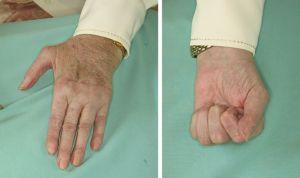 Quirónsalud ofrece una terapia que mejora la artritis reumatoide en 4 meses