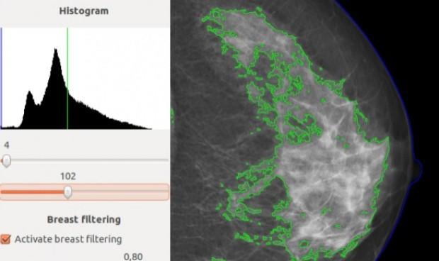 Regalan un software que predice el riesgo de tener cáncer de mama