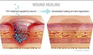 Investigadores sanan con piel sin cicatrices heridas crónicas