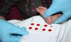 Sanidad establece las 16 dolencias que debe detectar la prueba del talón