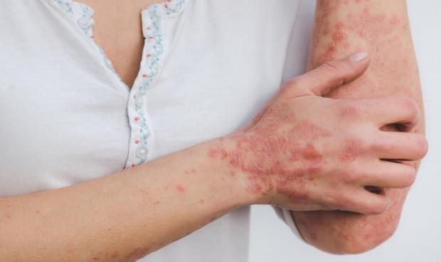 Seguir una dieta equilibrada reduce la inflamación de la piel