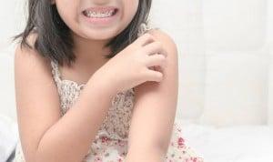Desarrollan un sensor que cuantifica el grado de picor del eczema infantil