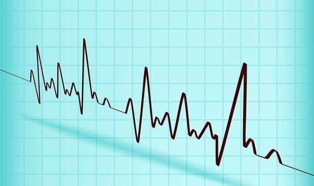 Si la fibrilación auricular dura poco, mejor no tome anticoagulantes