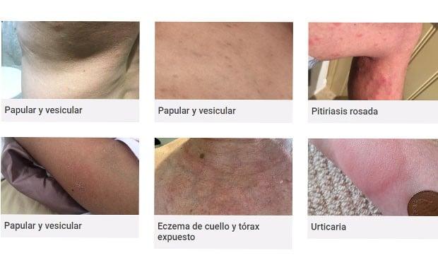 Erupciones en la piel, único síntoma de Covid en hasta el 21% de infectados