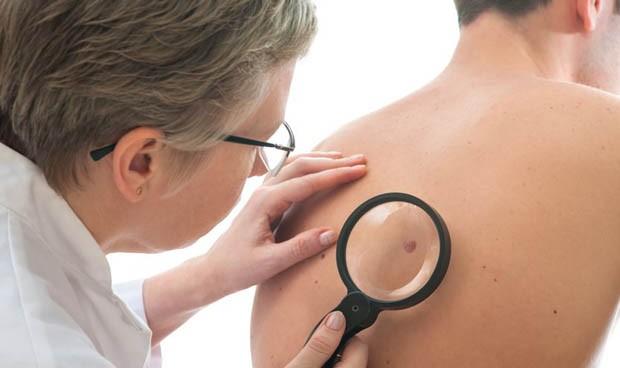 Solo 2 de cada 10 dermatólogos ejerce exclusivamente en la sanidad pública