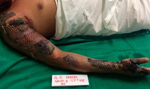 Tilapia: de pescado de consumo desaconsejado a terapia para las quemaduras