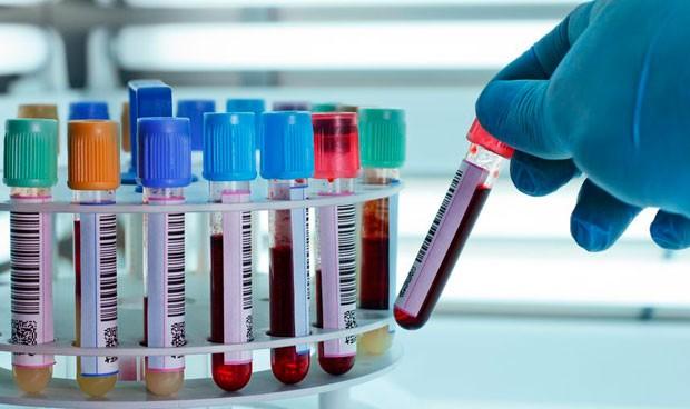 Un análisis de sangre detecta si el cáncer de ovario responde a quimio