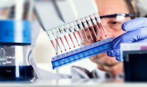 Un biomarcador afina la puntería de la inmunoterapia anti PD-L1