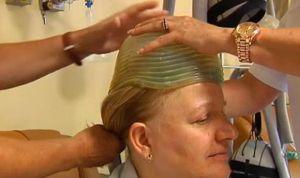 Un casco logra evitar que caiga el pelo por la quimioterapia