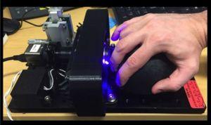 Un dispositivo portátil detecta si la quimio es demasiado agresiva