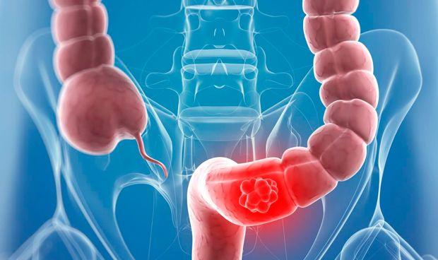 Un dúo bacteriano potencia la inflamación del colon y el riesgo de cáncer