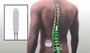 Un electrodo estimula la médula y permite a un parapléjico levantarse