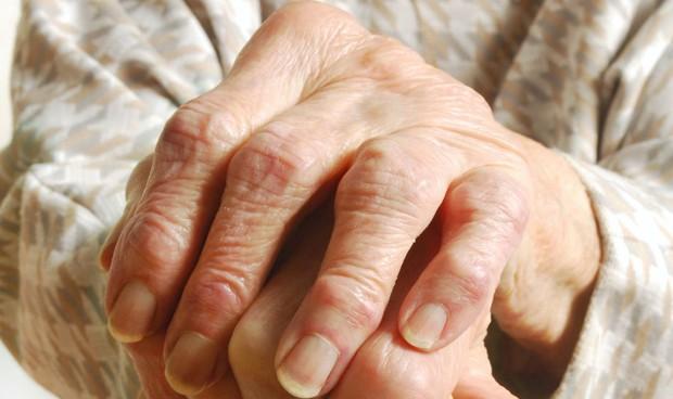 Un estudio vincula la artrosis a un mayor riesgo de infarto