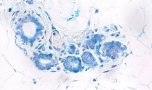 Un fármaco de anticuerpos impulsa la defensa inmunitaria en cáncer avanzado