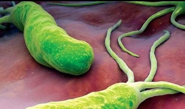 Un 'interruptor molecular' desencadena la infección por Helicobacter pylori