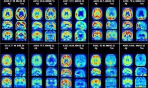 Un medicamento para el alzhéimer ayuda contra las resistencias antibióticas