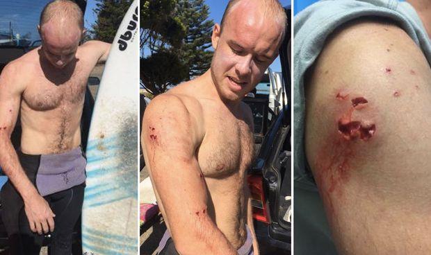 Un médico surfero se lía a puñetazos con un tiburón