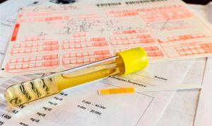 Un método detecta la cistinuria en la orina antes de manifestar síntomas