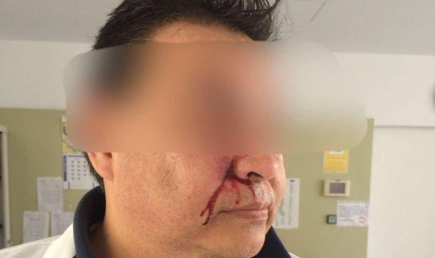 Un paciente agrede brutalmente a un médico en un ambulatorio de Mallorca