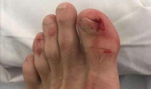 """Un paciente difunde fotos de la """"paliza"""" que le dio un médico en quirófano"""