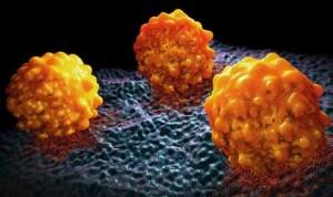 Un regulador genético facilita la metástasis del cáncer de páncreas