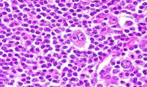 Un test de sangre 'predice' el éxito de la terapia de un tipo de linfoma