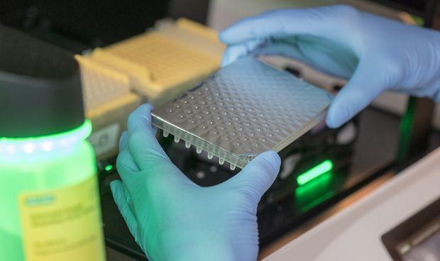Un test permite predecir la resistencia del cáncer de próstata a la terapia