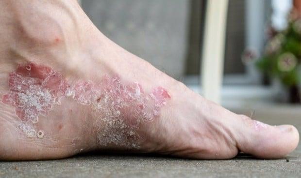 Una célula de la piel ayuda a tratar la dermatitis atópica y la psoriasis