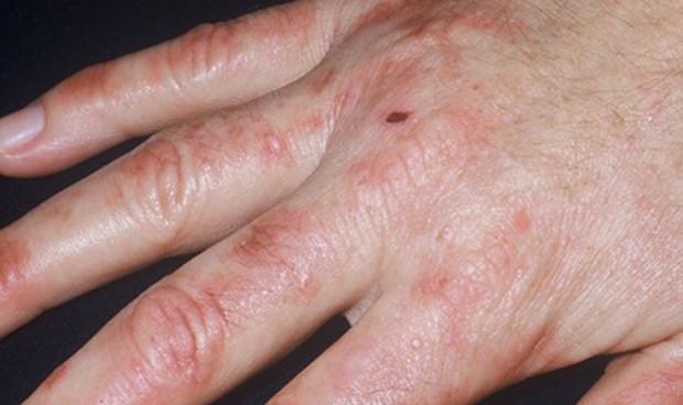 Una dermatóloga participa en el primer grupo español sobre porfirias