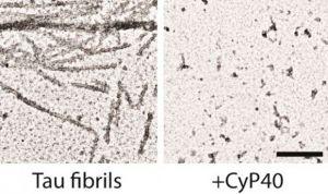 Una enzima humana, capaz de prevenir y revertir el alzhéimer y el párkinson