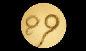 Una forma de controlar parásitos puede servir contra patologías digestivas
