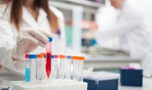 Una investigación busca el 'ingrediente secreto' contra la viruela
