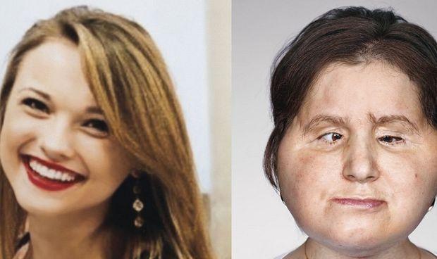 Una mujer de EEUU, la más joven del mundo en recibir un trasplante de cara