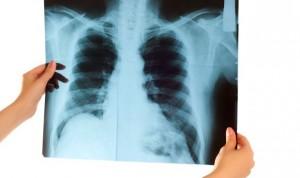 Una nariz electrónica detecta tumores de pulmón sensibles a inmunoterapia