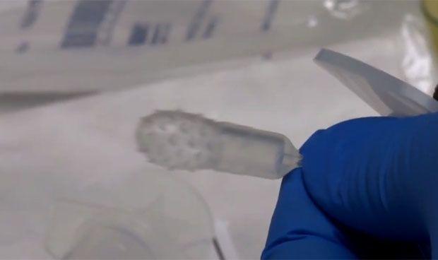 Una nueva cápsula detecta el cáncer de esófago de manera no invasiva