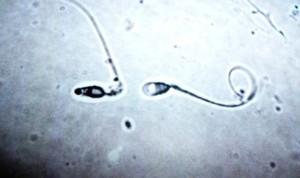 Una nueva píldora anticonceptiva masculina supera con éxito los ensayos