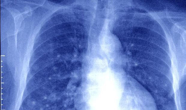 Una nueva técnica permite el diagnóstico precoz del cáncer de pulmón