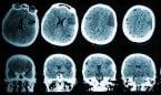 Una 'red' de 320 genes, diana de nuevos fármacos contra la epilepsia